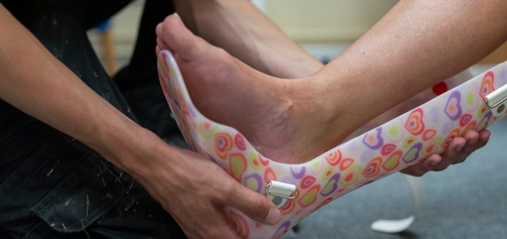 Stock image of a person's ankle going into a cast.